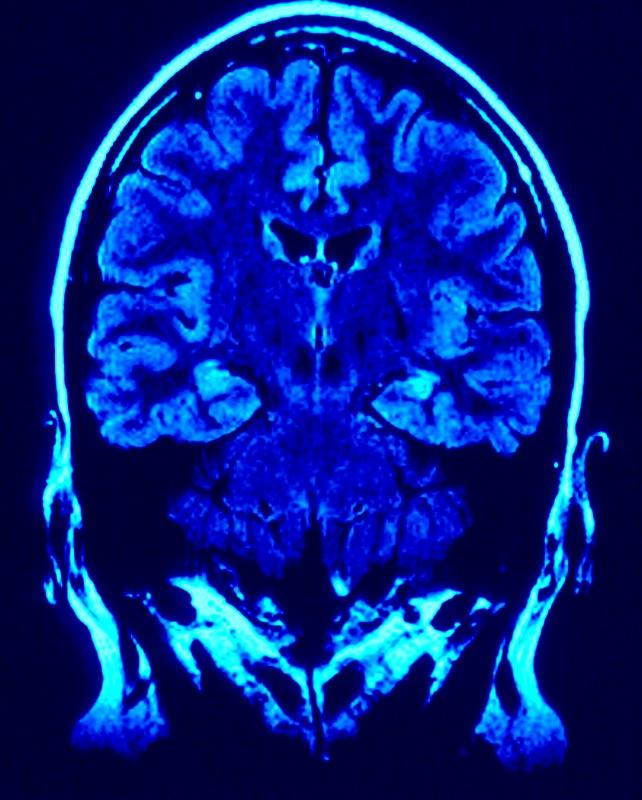 Vos ondes cérébrales déterminent votre état mental